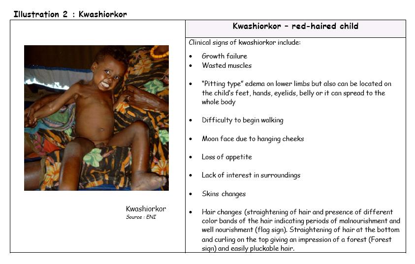 Signs of kwashiorkor
