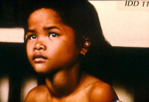 Common Micronutrient Deficiency Diseases - Diarrhoea - Mother